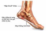 Đau gót chân là bệnh gì và có nguy hiểm không?