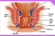 """11 cách chữa bệnh trĩ tại nhà đơn giản """"được bác sĩ khuyên dùng"""""""